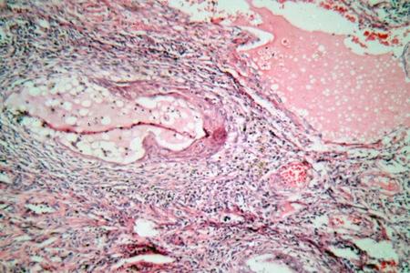 cervicales: foto de microscopio de las células de los tejidos de un cuello uterino humano (cuello del útero) con células de cáncer de cuello uterino.