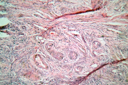 cervix: Microscope photo of tissue cells from a human cervix (neck of uterus) with cervical cancer cells. Stock Photo