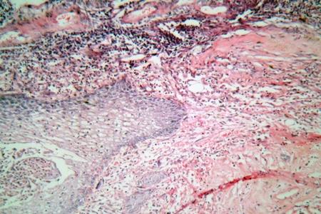 celulas humanas: foto de microscopio de las células de los tejidos de un cuello uterino humano (cuello del útero) con células de cáncer de cuello uterino.