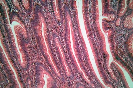 large intestine: foto de microscopio de las células intestinales humanas, grandes.