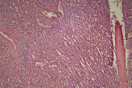 Cells of a human spleen with chronic myelogenous leukemia, under the microscope. Stock Photo