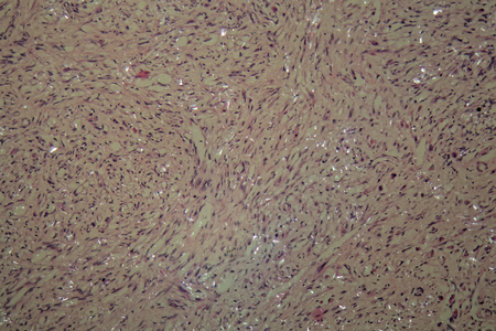 testicular: Cells of testicular cancer under a microscope.