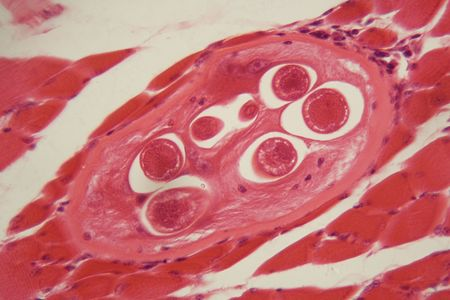 Trichinella spiralis larvae in muscle tissue under the microscope. Trichinella spiralis is a nematode parasite responsible for trichosis and affecting mammals.