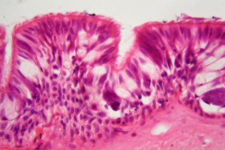 A cross section of ciliated epithelium under the microscope.