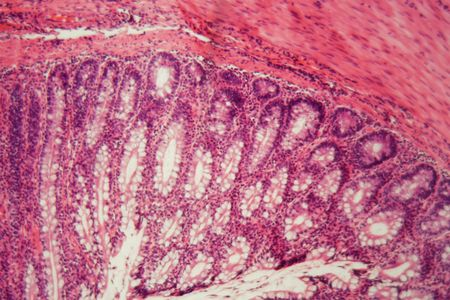 Section of a dog ciliated epithelium under the microscope.