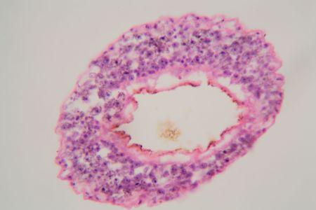 Schistosoma mansoni under the microscope. Schistosoma mansoni is human parasite and causes schistosomiasis. Stock Photo