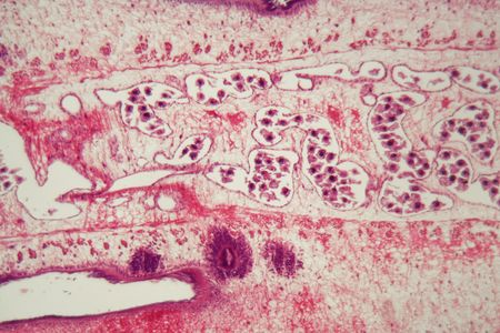 Segment of a tapeworm body (Proglottid) under the microscope.