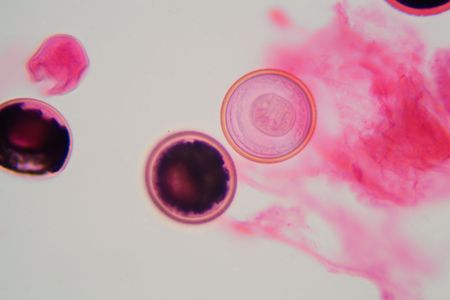 Eggs of a Taenia tapeworm. Taenia is a genus of tapeworm parasites on livestock and humans.