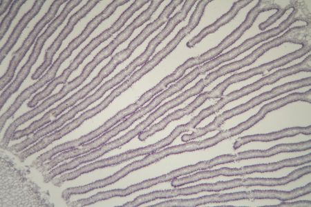 Detail of a Coprinus mushroom under the microscope.