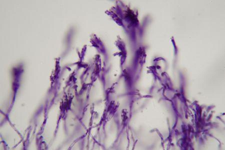 Microscope photo a bundle of blue stained Penicillium fungis. Stock Photo