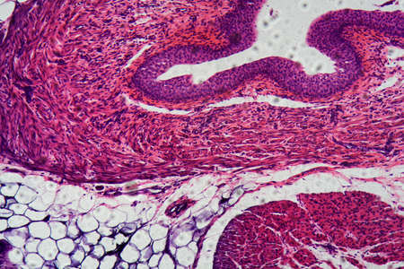 Cells of human transitional epithelium under the microscope.