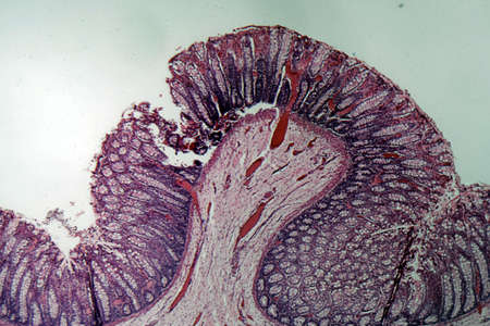 Microscope photo of a section through rectum cells of a dog. 스톡 콘텐츠