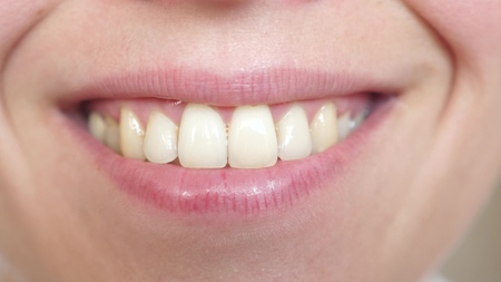 Close up on a beautiful smile of a young woman. girl smiling teeth and lips close-up.