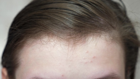 Les adolescentes appliquent une crème hydratante pour le visage contre l'acné. fille se frotte le front avec une serviette. Procédures cosmétiques pour les adolescents. fermer Banque d'images