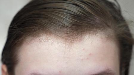 Tienermeisjes brengen een vochtinbrengende gezichtscrème aan voor acne. meisje wrijft over haar voorhoofd met een servet. Cosmetische procedures voor tieners. detailopname Stockfoto
