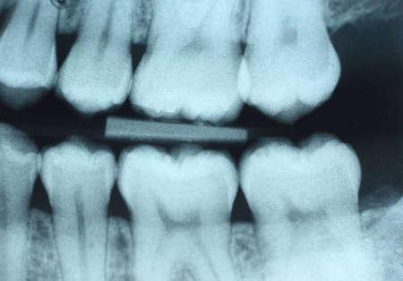 Dit is een tandheelkundige röntgenfoto (hap-vleugel) van de linker kant zonder enige zichtbare verval.