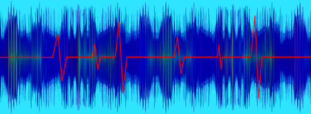 Heartbeat red line on turquoise electrocardiogram screen.Digitally generated image. Stock Photo