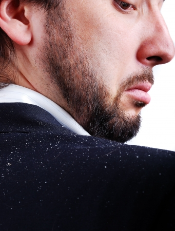 scalp: Dandruff issue on mans sholder Stock Photo