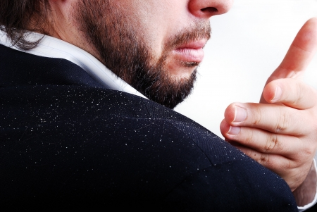 Dandruff issue on mans sholder Stock Photo