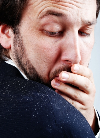 psoriasis: Dandruff issue on mans sholder Stock Photo