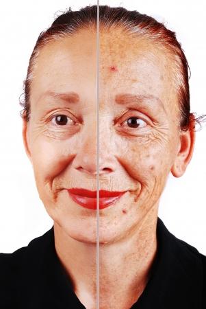 piel humana: Senior mujer con la cara de piel vieja y la otra mitad retocadas Foto de archivo