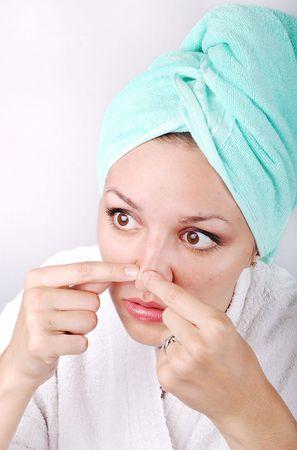 nariz roja: J�venes sexy girl con acn� en su nariz
