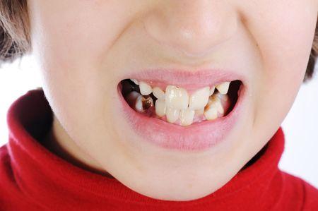 rotten: dentist Stock Photo