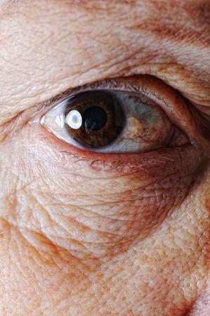 redness: Old skin, eye, closeup