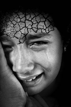 ni�o llorando: Ni�a llora con piel agrietada frente Foto de archivo