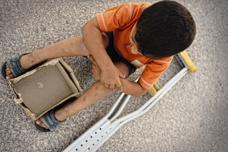 Hungry kid begging on the street with a crutches beside photo