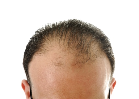 Man loosing hair, baldness Stock Photo