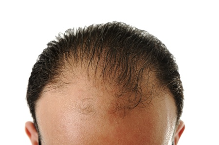 receded: Man loosing hair, baldness Stock Photo