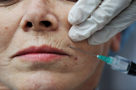 Senior woman getting skin care injection  photo