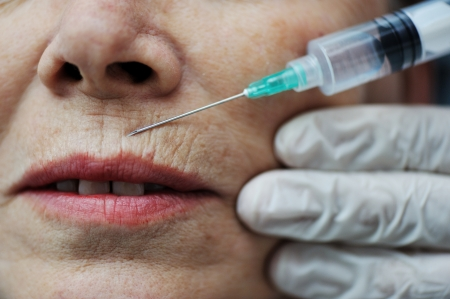Needle injection on mature woman face photo