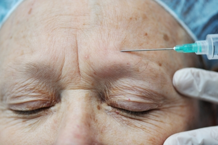 forehead: Aged female receiving botox injection in forehead Stock Photo