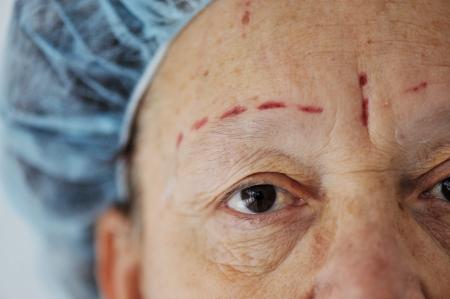 Ready for botox. Senior lady on hospital bed. photo
