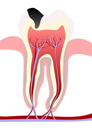 diente caries: Caries en los dientes Vectores