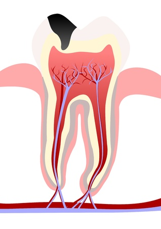 Tooth decay Illustration
