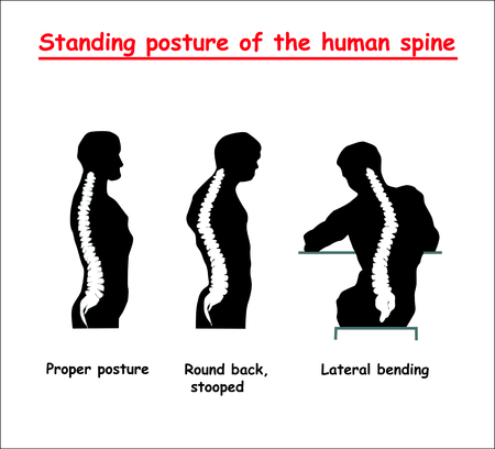 Standing posture of the black human spine. Defects of the human spine.
