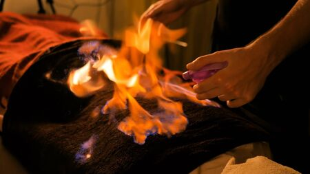Chinese fire massage - Huo Liao therapy. Traditional chinese medicine, fire treatment and bodycare concept Фото со стока
