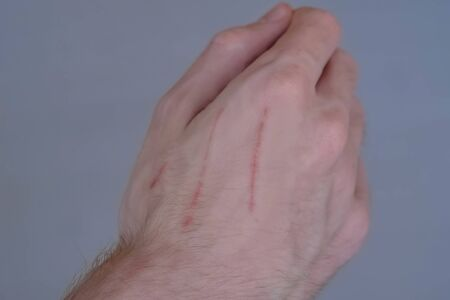 Close up view of man showing fresh cat scratches on his hand. First aid, healthcare, treatment and medicine concept