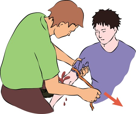 blood flow: First help - stop blood flow with rubber band. Vector Illustration