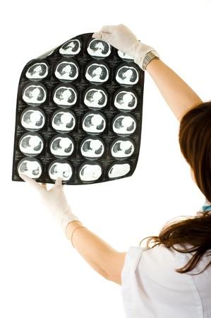 vetical: Mujeres en busca de un m�dico de rayos xy pulmones. Aislado sobre fondo blanco